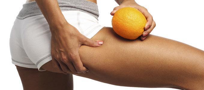 Tratamientos contra la piel de naranja