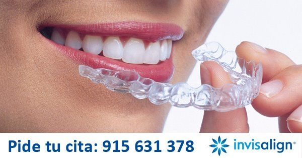 Invisalign ortodoncia transparente removible