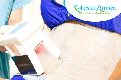Kalieska Arroyo - Clínica Plástica & Medical Láser