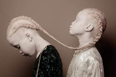 Lara e Mara: as gémeas albinas que estão a revolucionar o mundo da moda